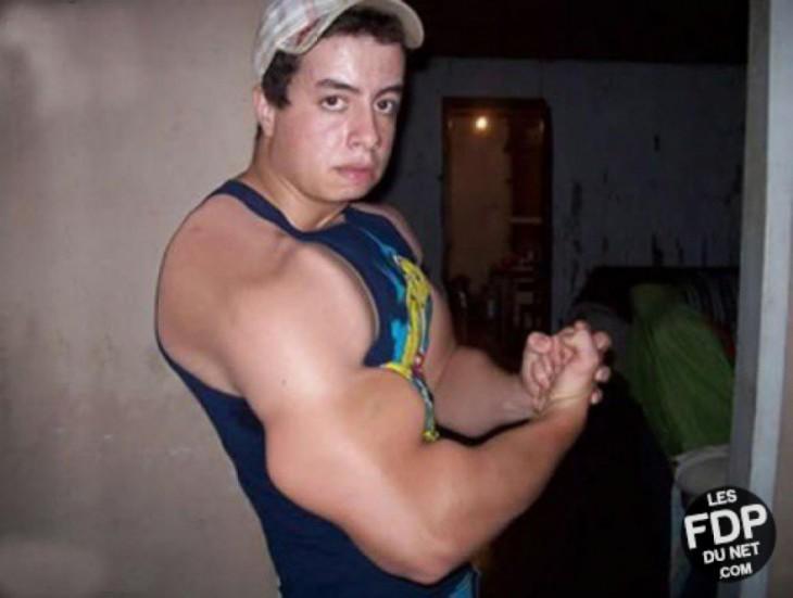 hombre con lso musculos deformes