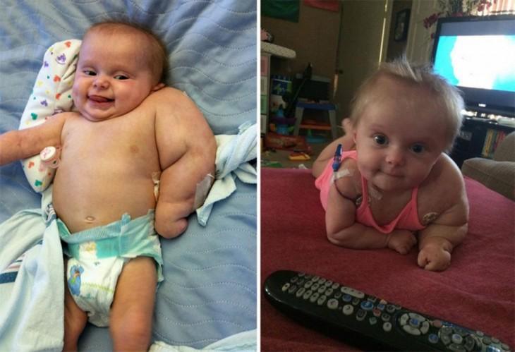 Scarlette niña que se le detectó un extraño cáncer en el brazo izquierdo