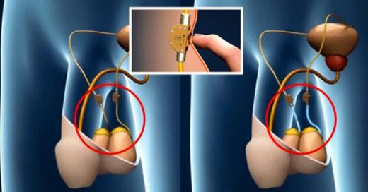 Crean nuevo método anticonceptivo masculino