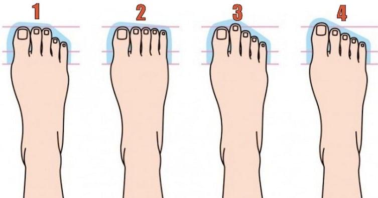 ilustración que enumera 4 diferentes tipos de pies