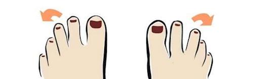 ilustración que muestra la inclinación del tercer dedo del pie