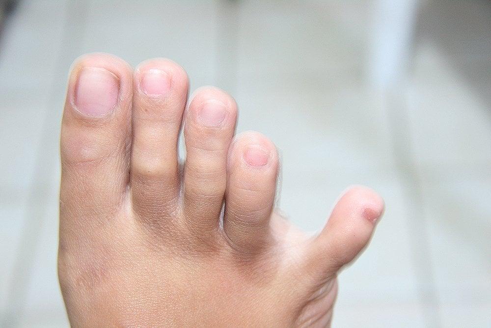dedo pequeño del pie que se separa de los demás