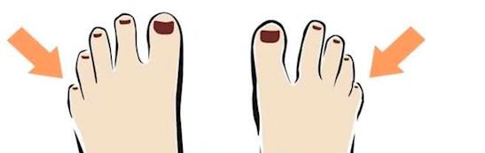 ilustración que muestra un espacio entre el primer y segundo dedo del pie