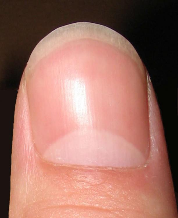 lúnula es la parte semilunar blanca que tenemos en la uña