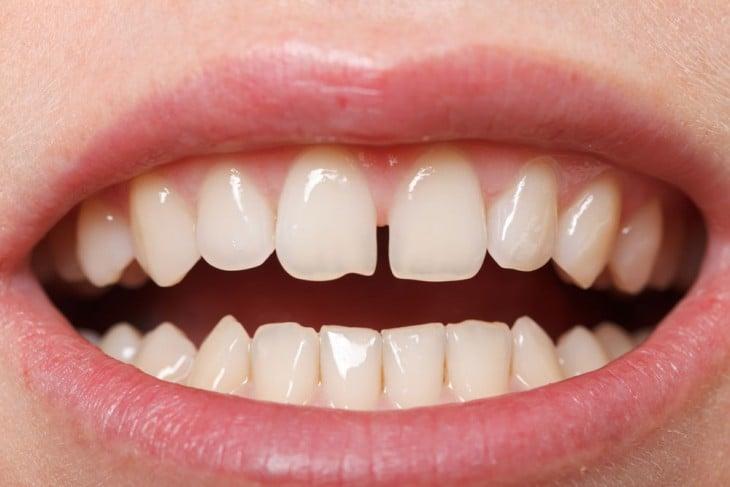 diastema es el espacio entre los dientes