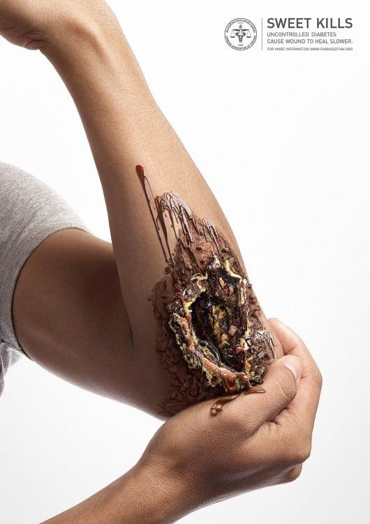 Sweet Kills campaña contra la diabetes imagen que muestra un brazo roto pero con un maquillaje de postre de chocolate
