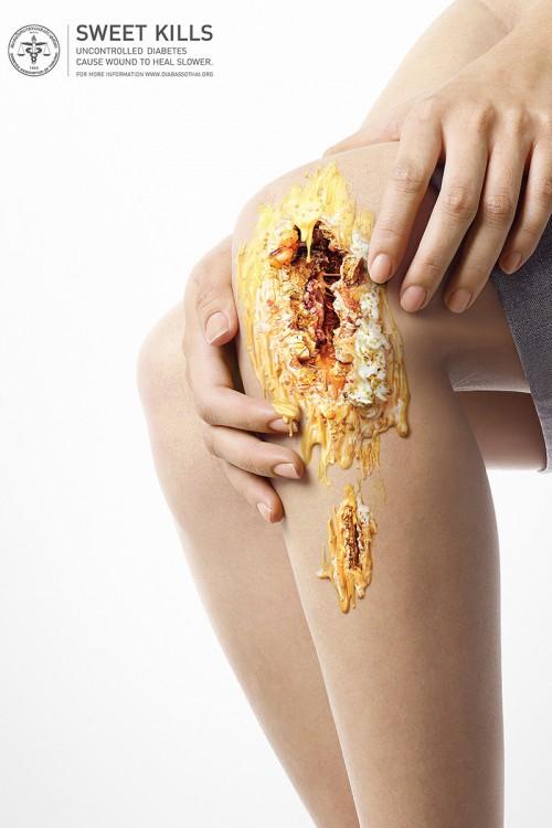 campaña publicitaria contra la diabetes con una herida dulce sobre la pierna de una persona