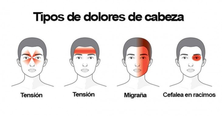 ilustración que muestra los tipos de dolores de cabeza