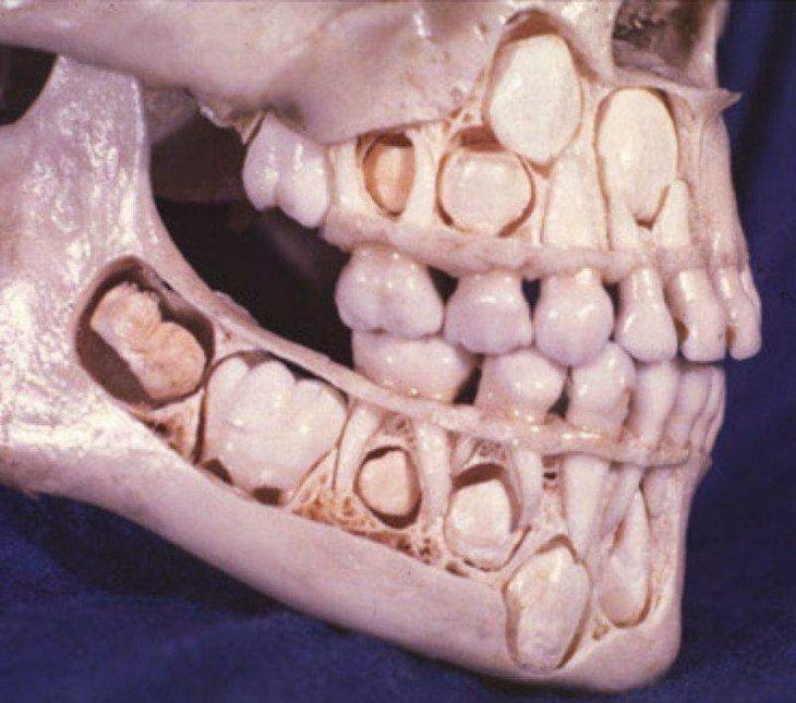 esqueleto de un pequeño antes de mudar su primera dentadura
