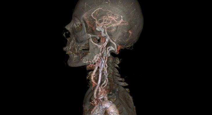 Así se ve una electroradiografía de todo el cuerpo a magnitud