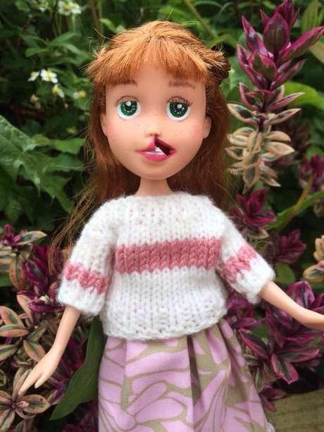 Muñeca con labio leporino #ToyLikeMe