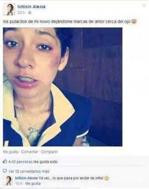 estado de internet en el que una chica sube una foto suya con la cara golpeada diciendo que son marcas de amor