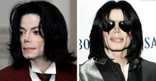 Michael en el 2016 si nunca se hubiese sometido a ninguna cirugía