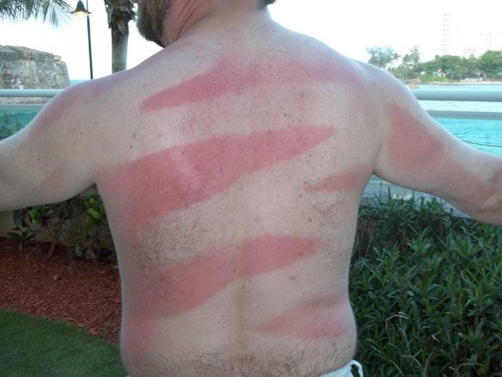 persona que se hizo un tatuaje solar en su blanca piel