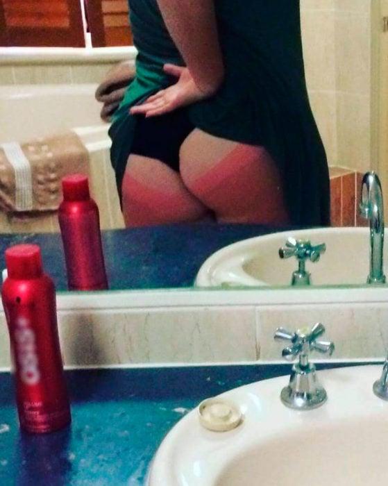 mujer muestra su trasero quemado en el espejo