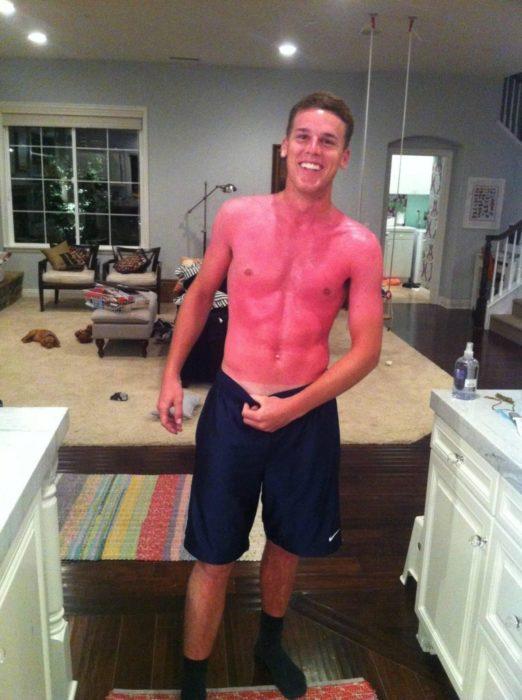 hombre con abdominales marcados quedo quemado con el sol