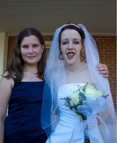 Sonrisa de novia terrible
