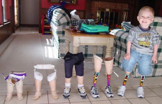 Niño pequeño mostrando sus prótesis de piernas