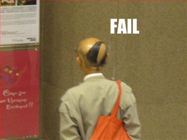 FAIL de cabello en calvo