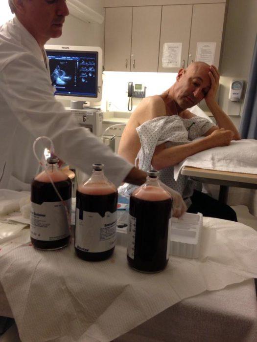 Hombre enfermo de cancer