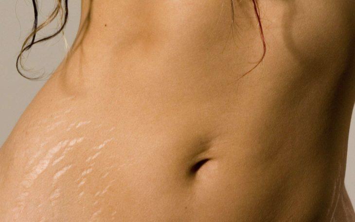 """vientre de mujer con cicatriz de estiramiento de la piel """"estrías"""""""