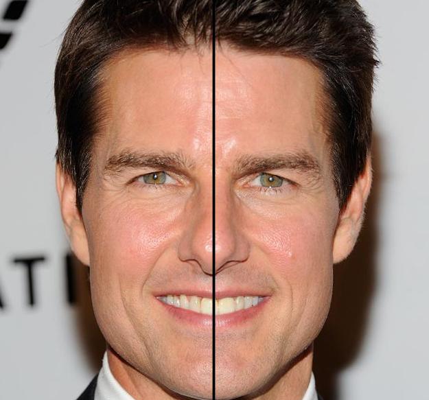 Tom Cruise a la mitad de su cara tiene un diente. Su cara es asimétrica