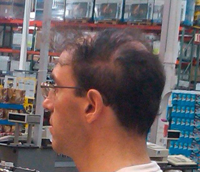Pelo de persona calva peinado hacia un lado