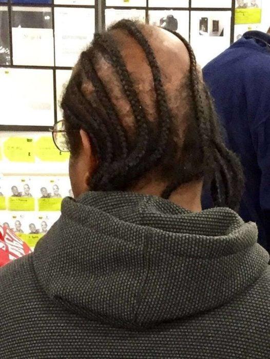 hombre calvo con trenzas en su cabello