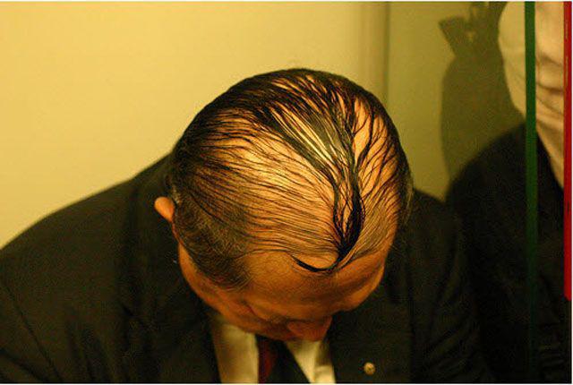 Persona con calvicie peinado hacia adelante