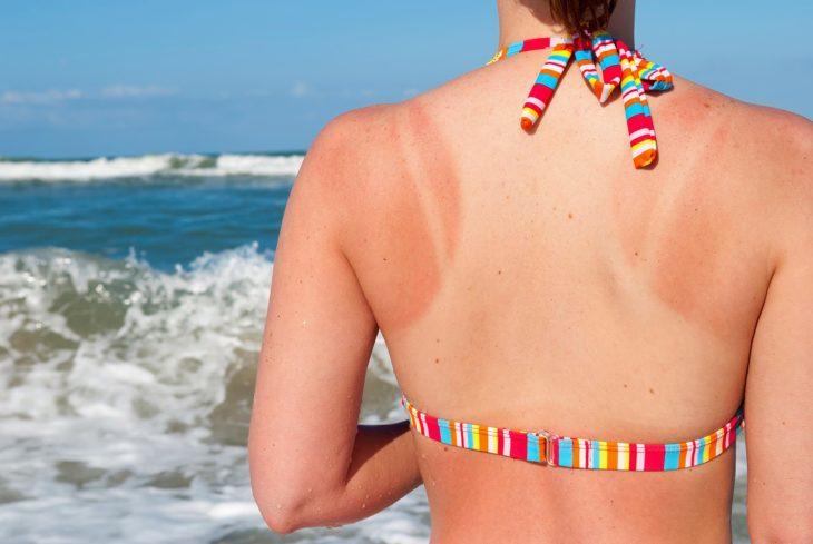 espalda de mujer con quemadura solar en la playa