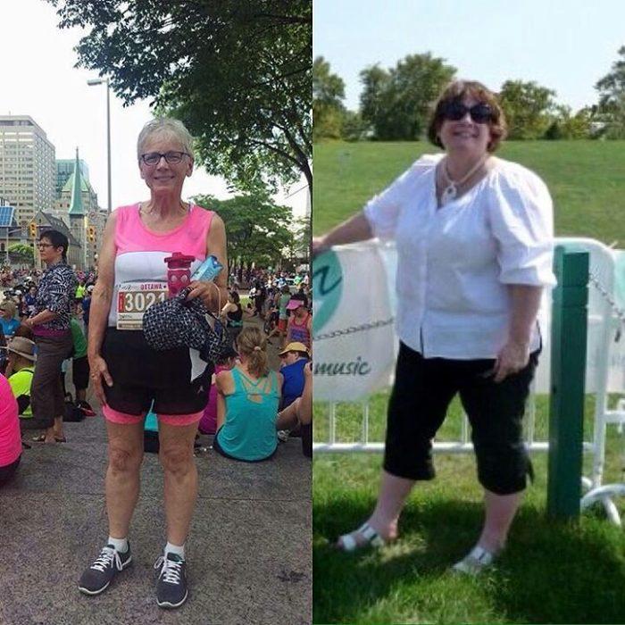anciana antes y después de perder peso