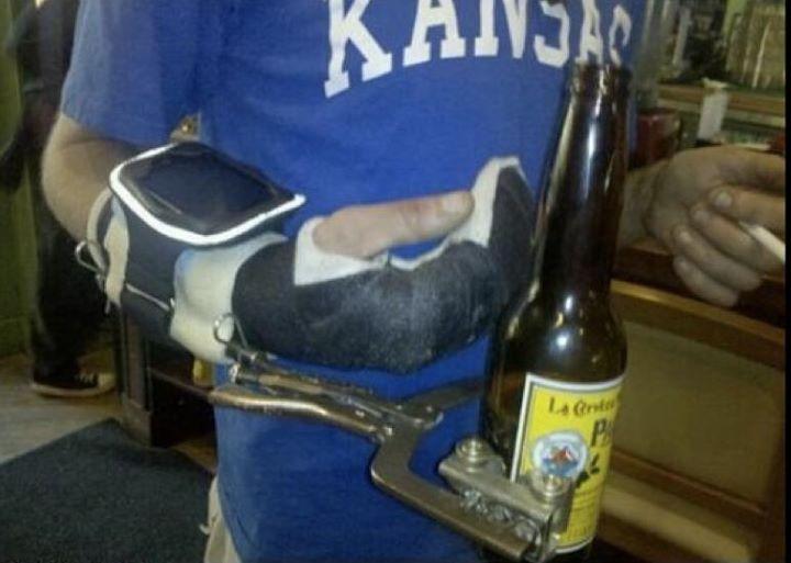 brazo roto y cerveza