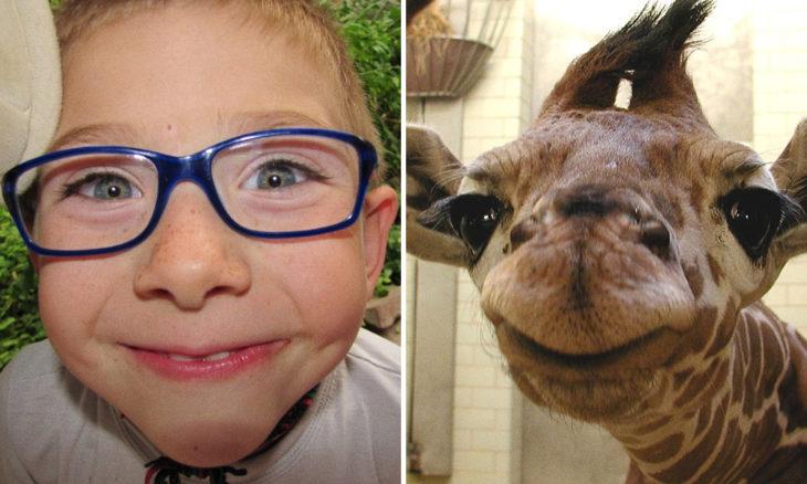 Niño con cara de jirafa