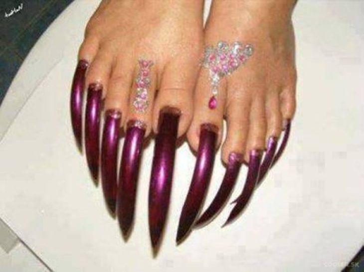 uñas asquerosas de los pies