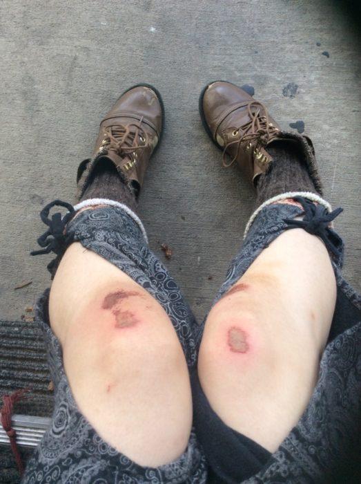moretones en las rodillas