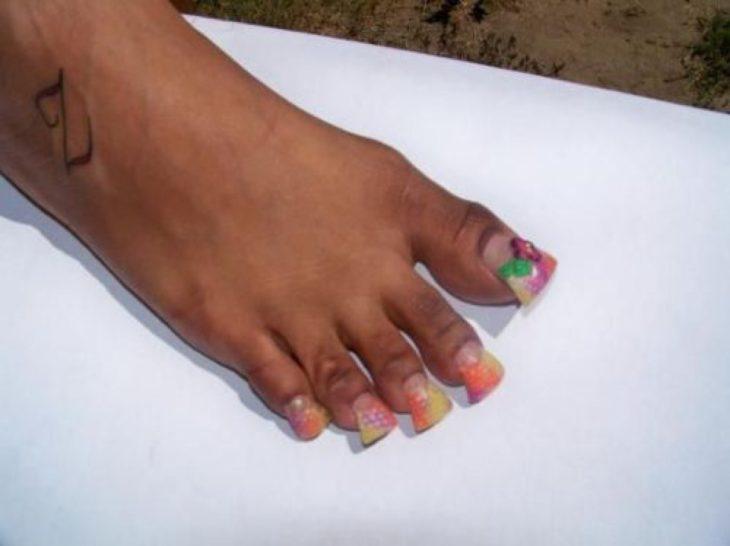 uñas feas en los pies