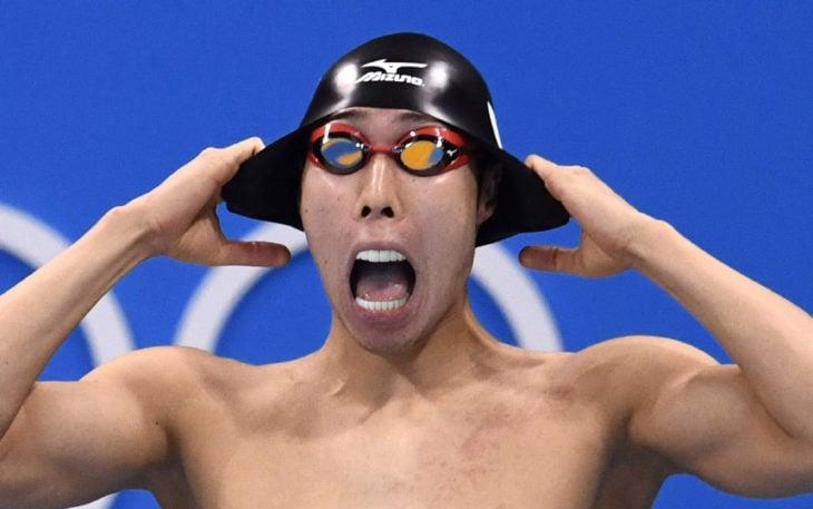 nadador le arreglaron los dientes