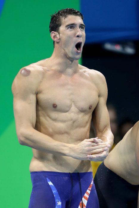 Michael Phelps con un moreton de ventosa en el hombro derecho