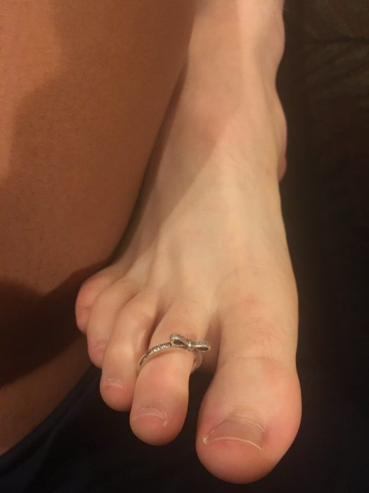 dedo del pie con anillo