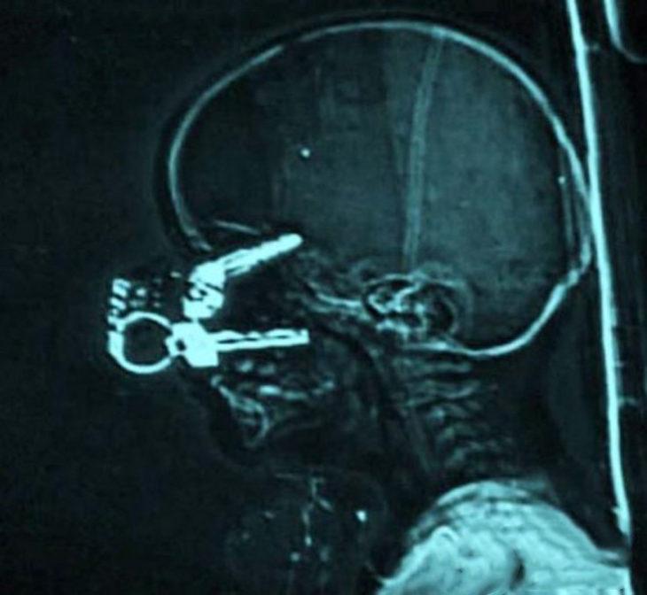 radiografía llaves en el cráneo de un bebé