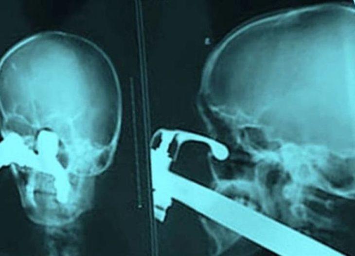 bastón en cráneo radiografía