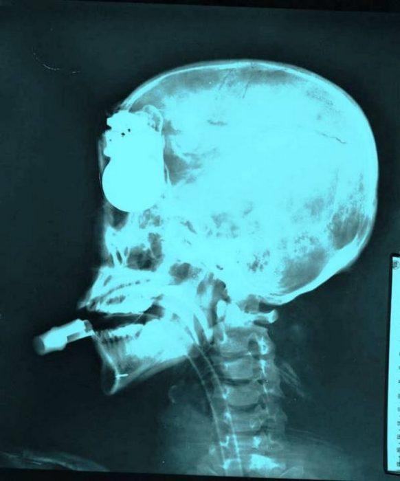 granada en la cabeza rayos x
