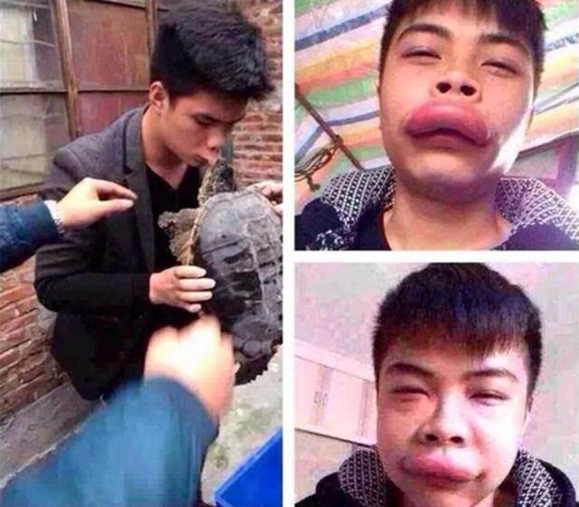 muchacho cuyos labios fueron mordidos por una tortuga