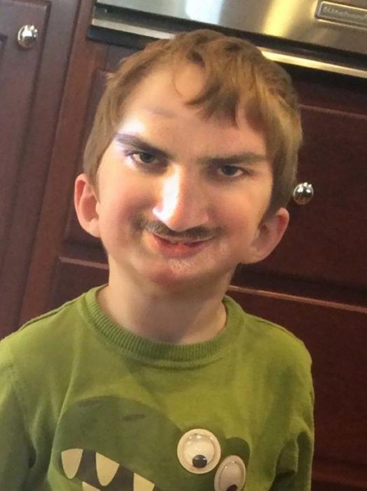 niño con cara de adulto