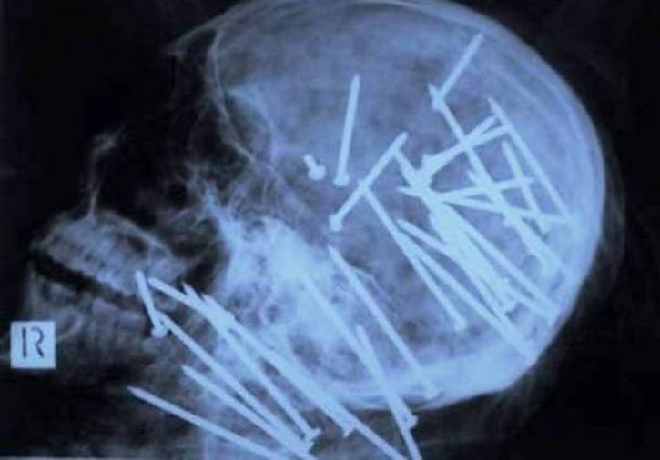 muchos clavos en el cráneo de una persona