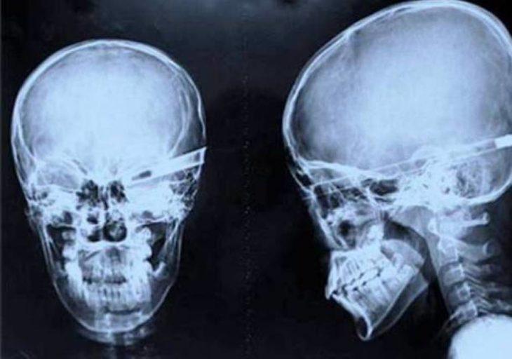cráneo atravesado por una flecha