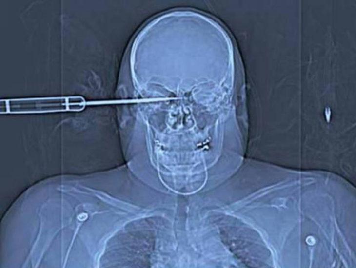 radiografía cráneo atravesado por un cuchillo