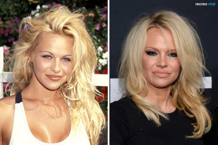 Cirugías. Pamela Anderson antes y después