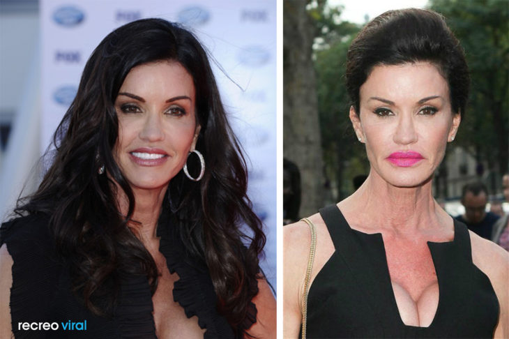 Cirugías. Janice Dickinson antes y después