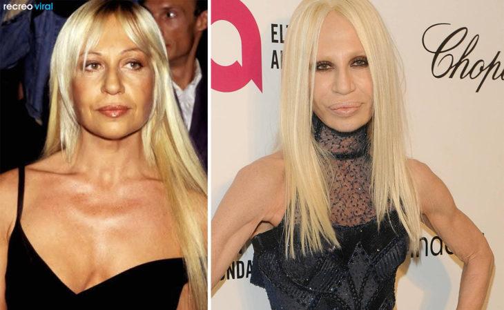 Cirugías. Donatella Versace antes y después